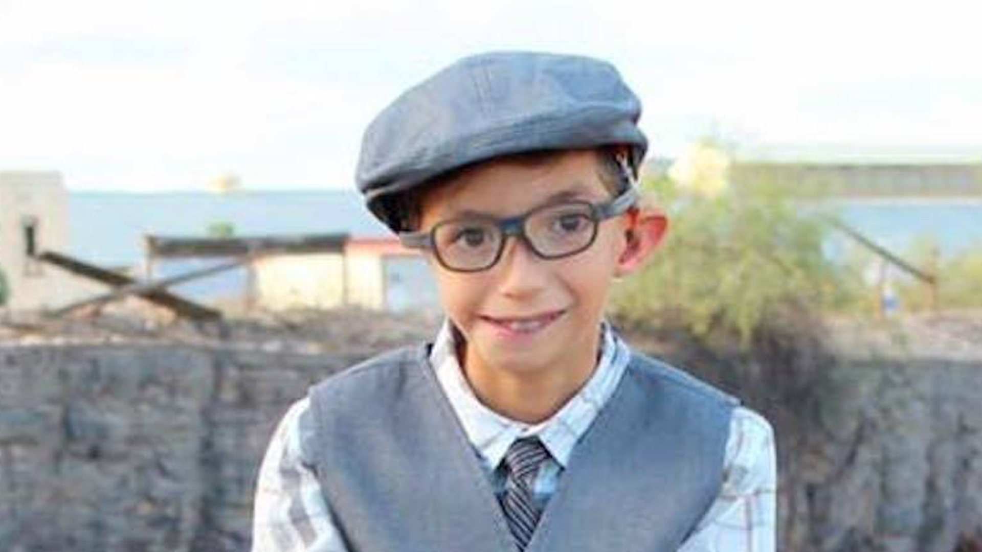 Joel nació con una deficiencia craneofacial y le falta una oreja