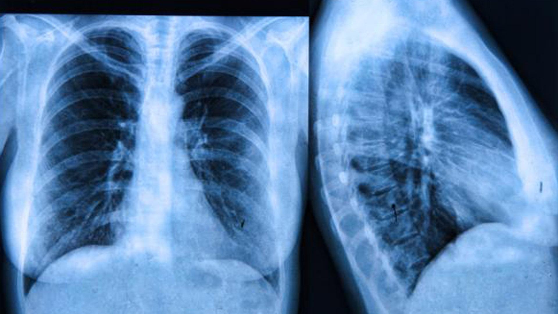 Que es la fibrosis quistica y sus sintomas