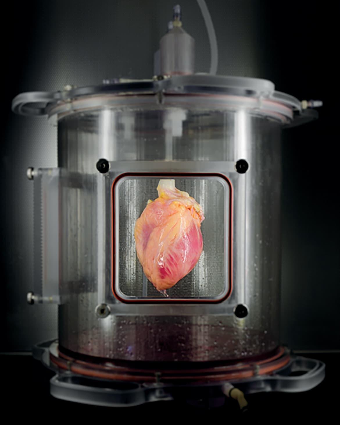 Modelo de tejido cardíaco biosintético (massgeneral.org)