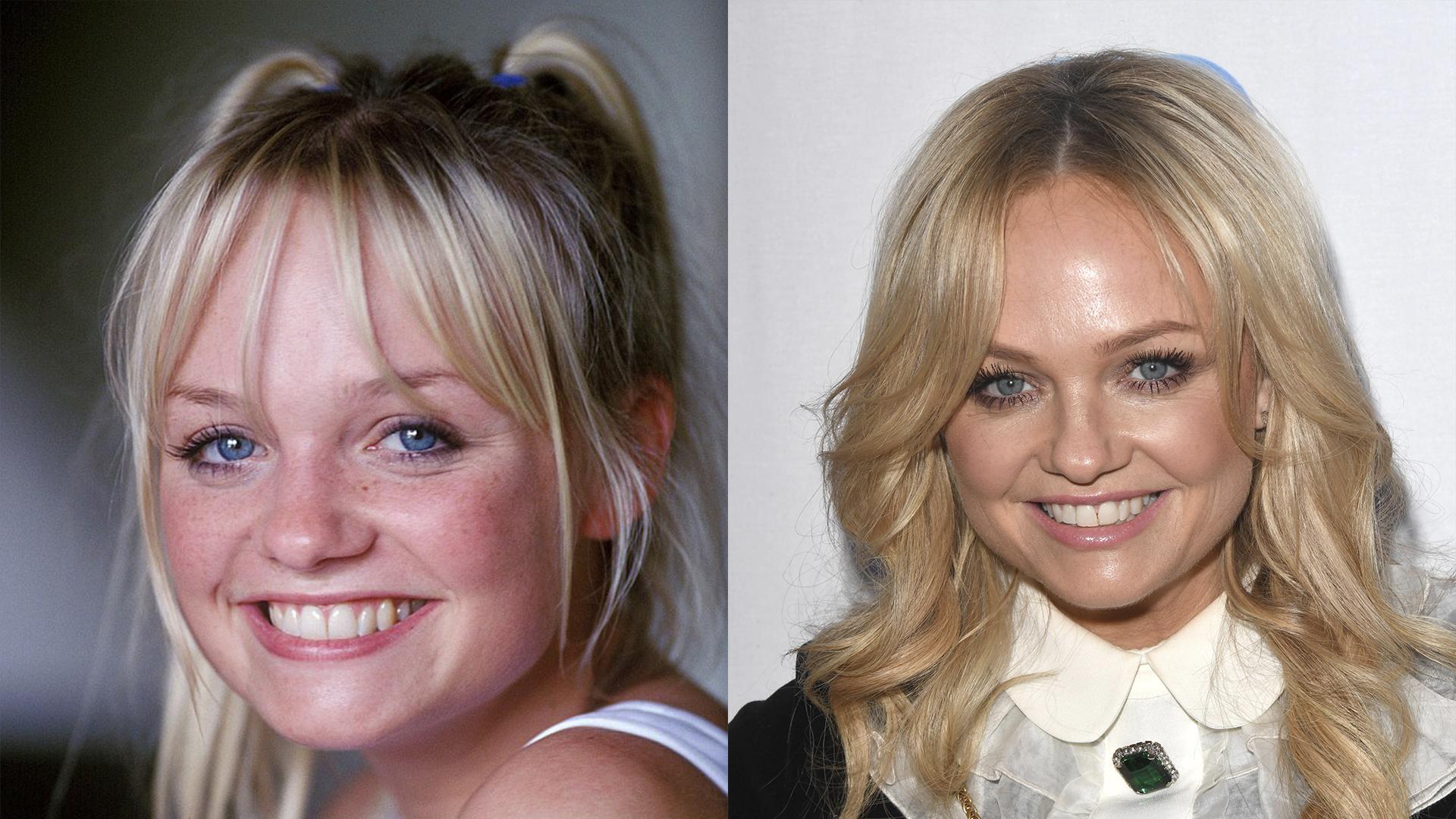 Emma Bunton antes y despues