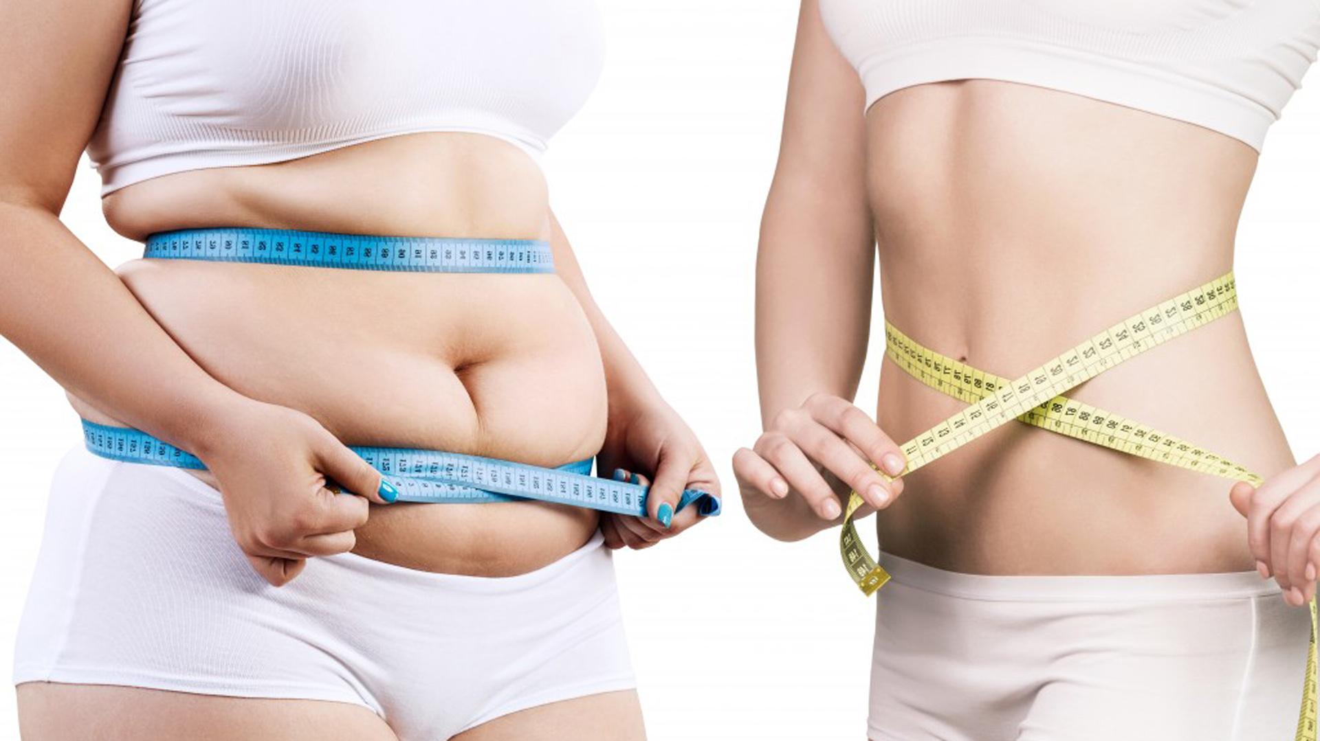 exceso de grasa adiposa