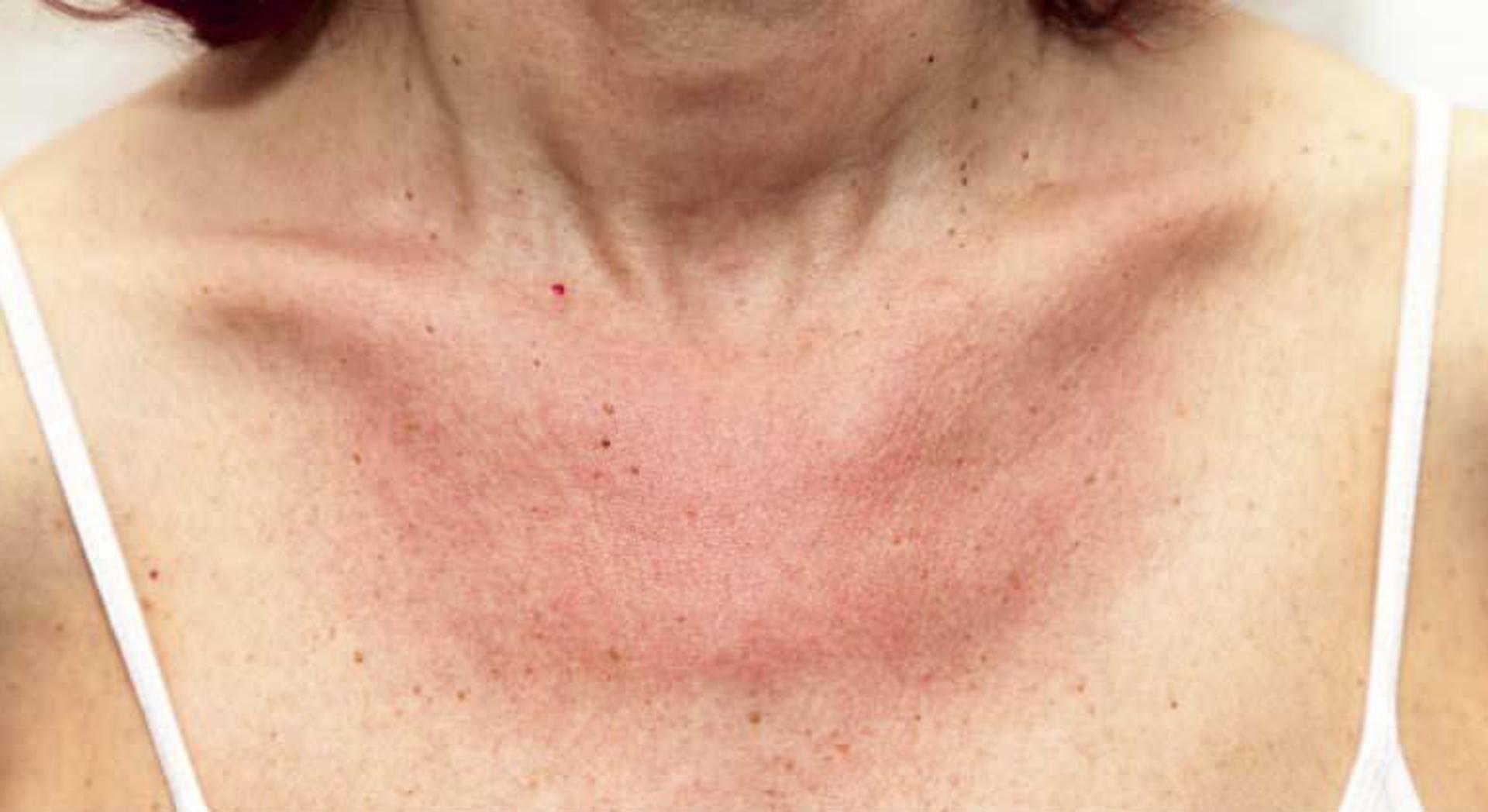 Alergia por tomar sol y reacción en la piel
