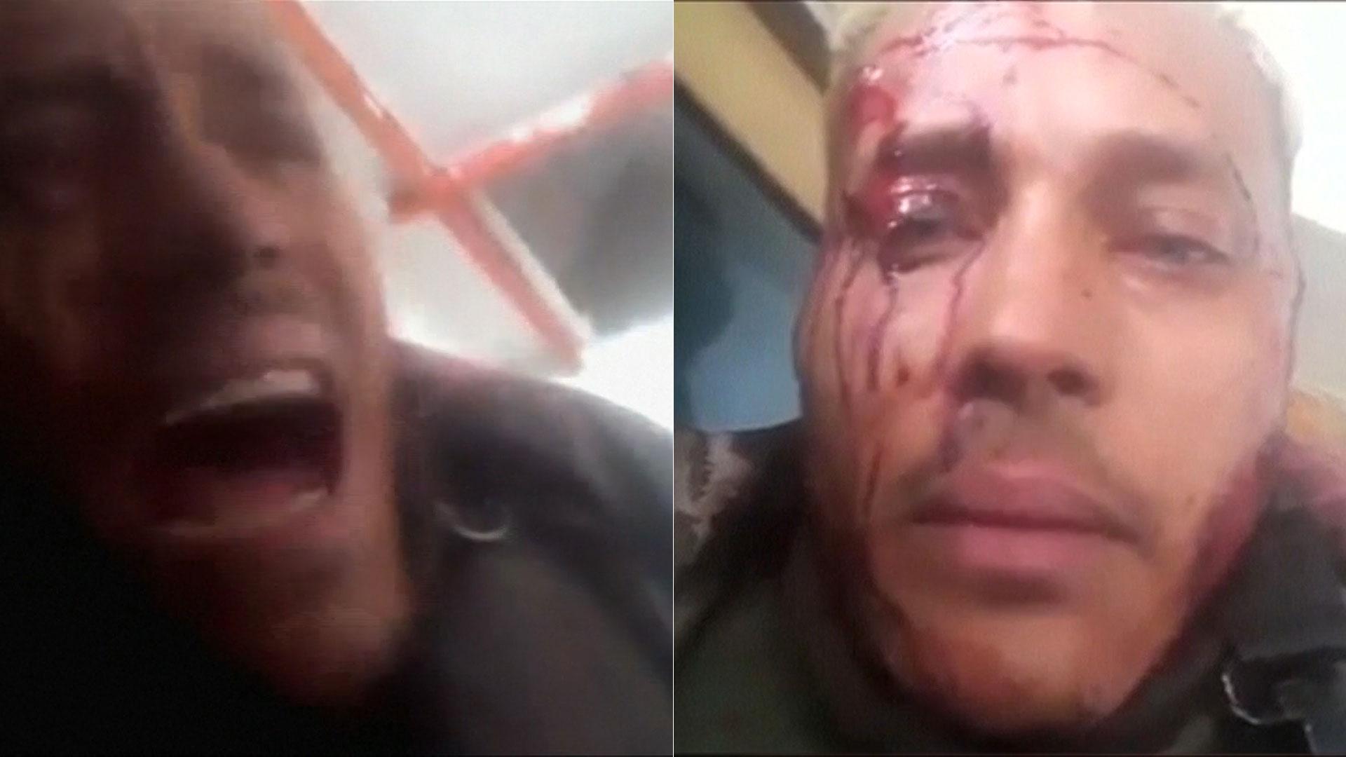 Óscar Pérez fue asesinado por las fuerzas chavistas