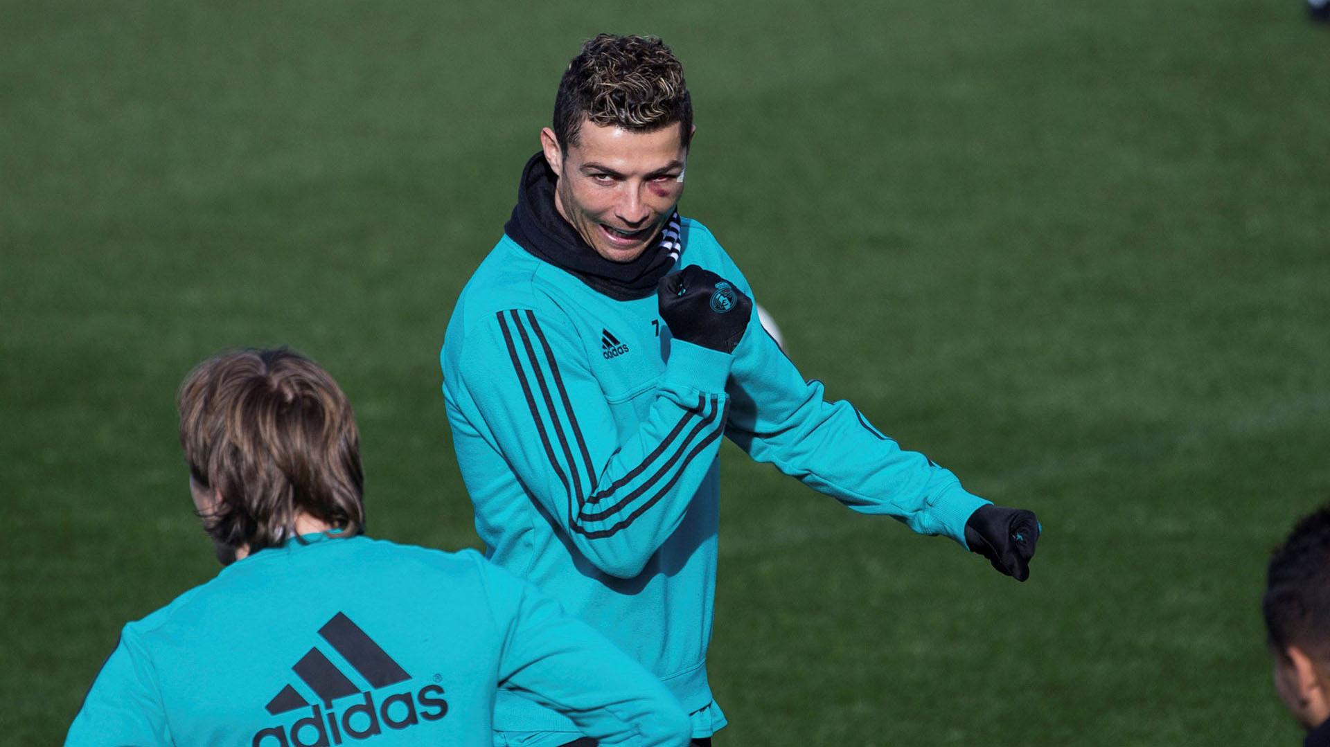 Cristiano Ronaldo sufrió una patada en la carapartido que el Real Madrid se impuso por 7 a 1 ante el Deportivo La Coruña