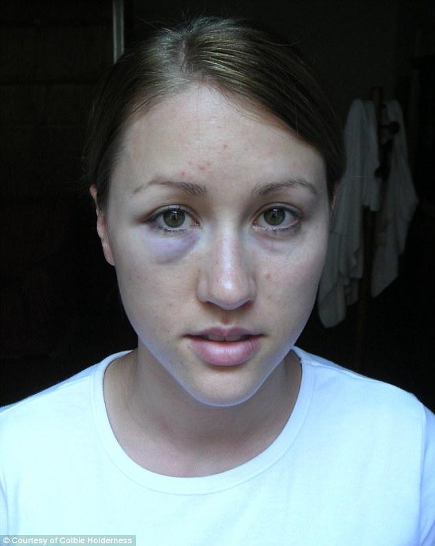 La ex esposa de Rob Porter Colbie Holderness muestra los golpes que había recibido por su ex marido en una foto publicada por el Daily Mail