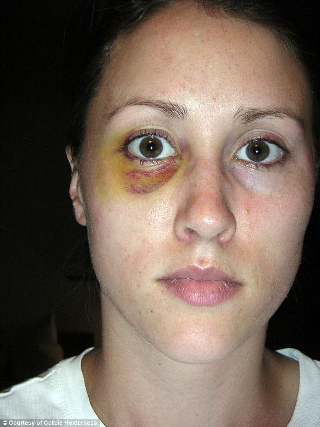 La ex esposa de Porter Colbie Holderness muestra los golpes que había recibido por su ex marido en una foto publicada por el Daily Mail