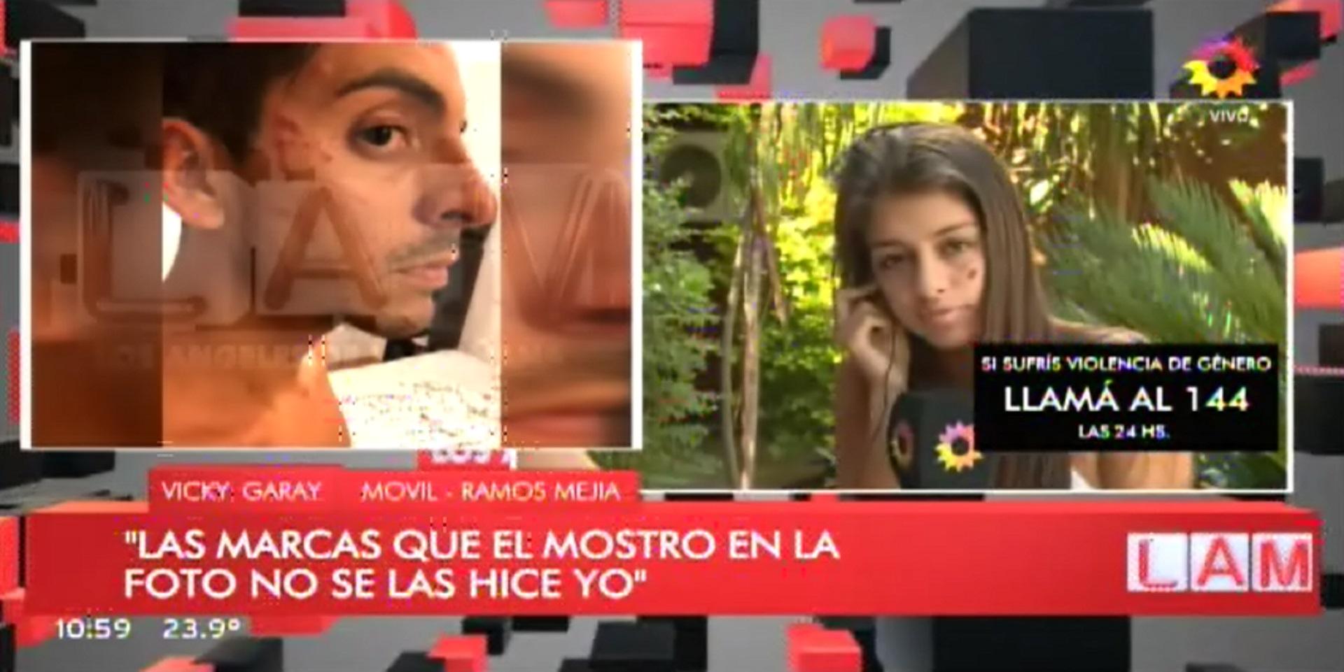 Tras la separación, Guillermo Ardohain denunció a Victoria Garay y mostró su cara lastimada