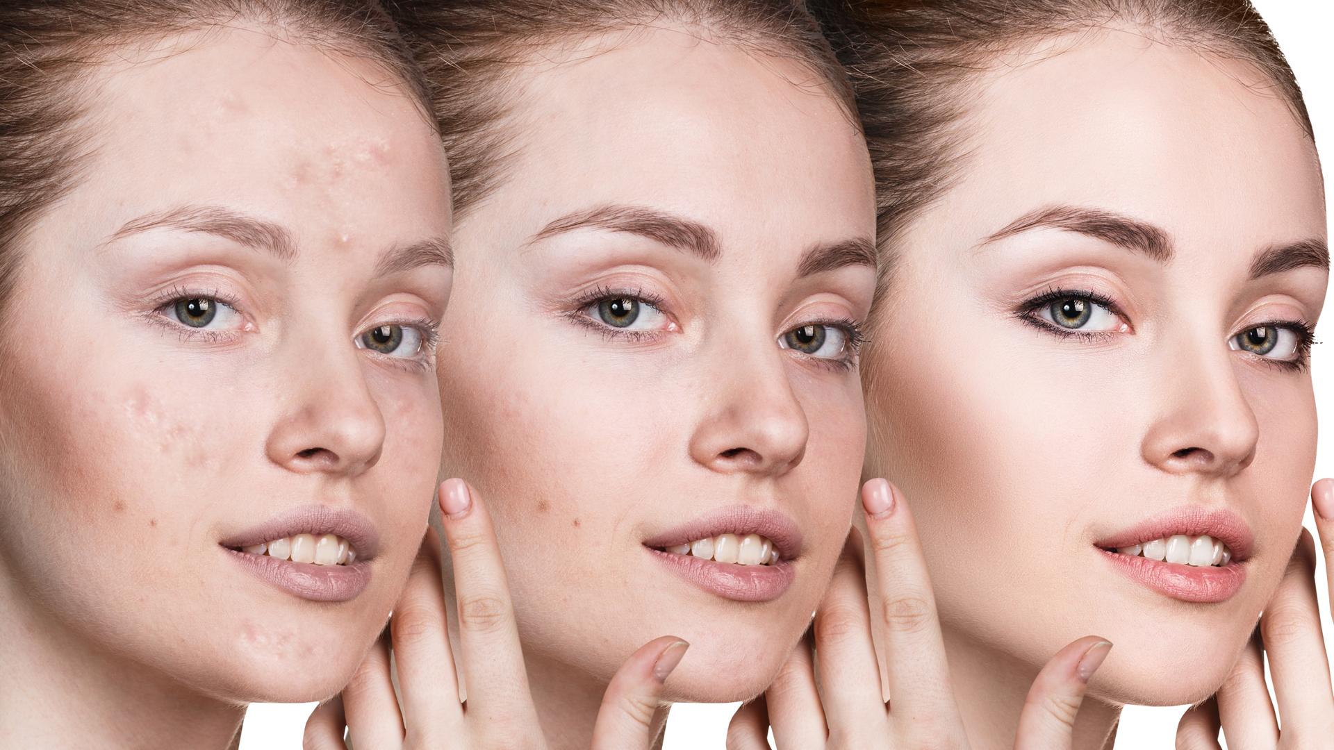 El maquillaje es el mejor aliado para tapar las manchas de acné y unificar el tono de la piel (Getty Images)