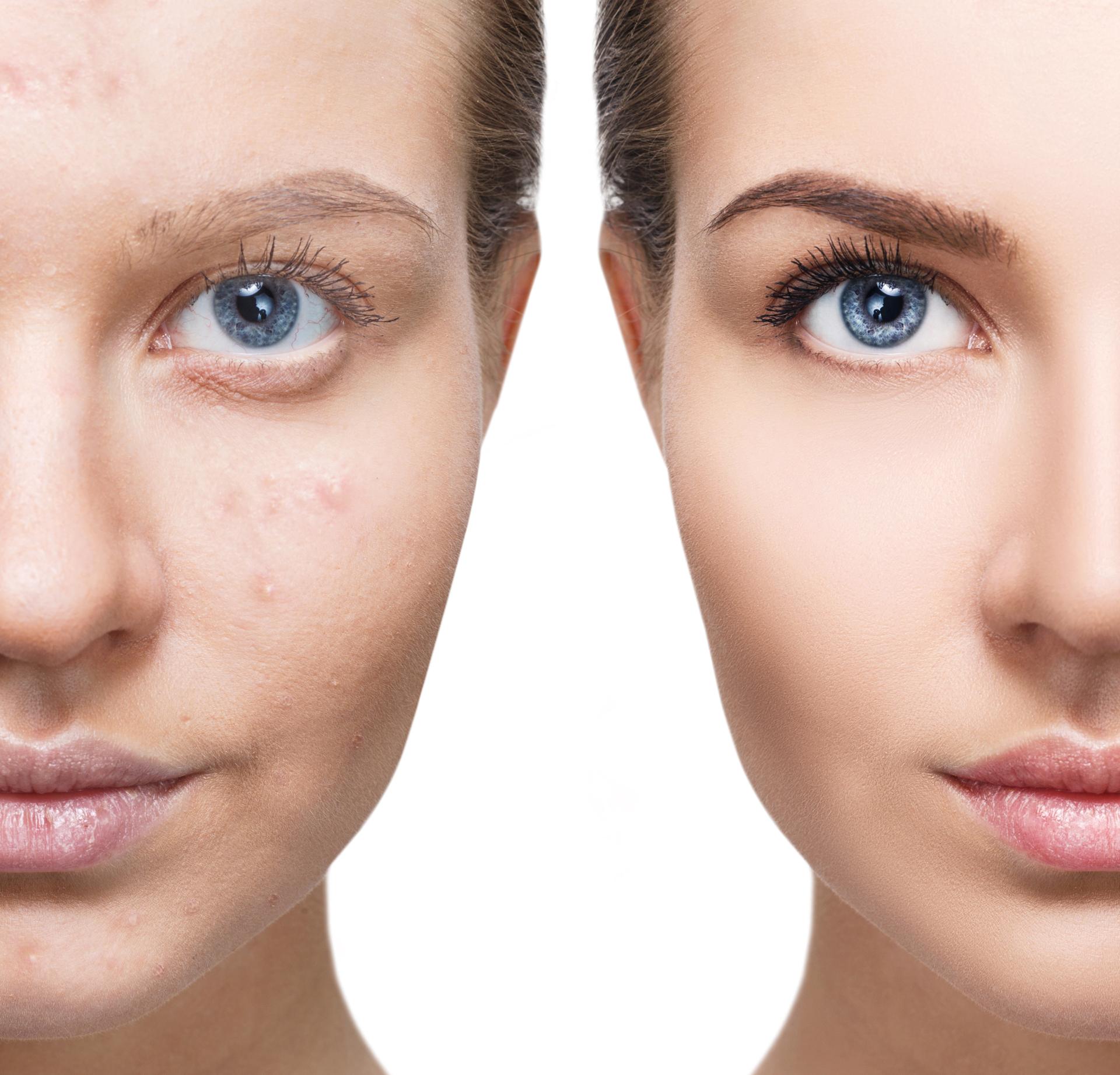 Los correctores o la misma base que se aplique al maquillarse ayudan a tapar las imperfecciones de la piel (Getty Images)