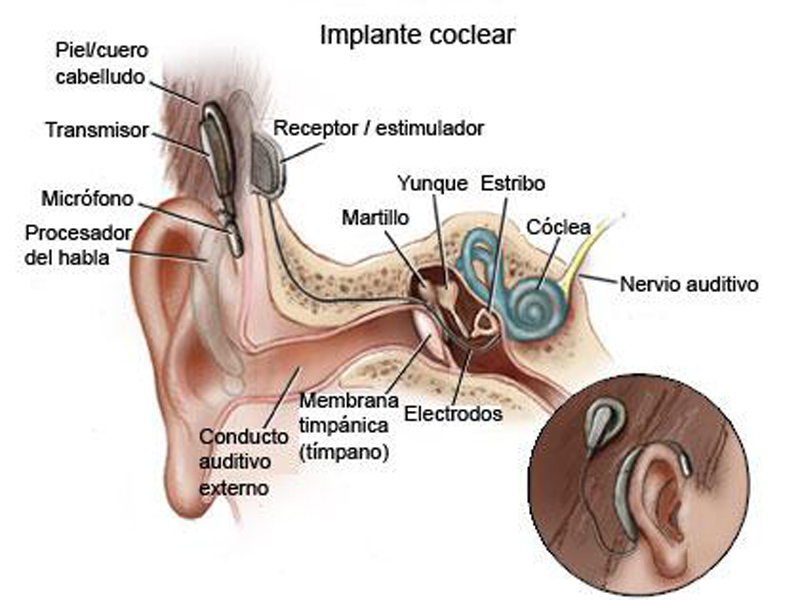 implante coclear 1