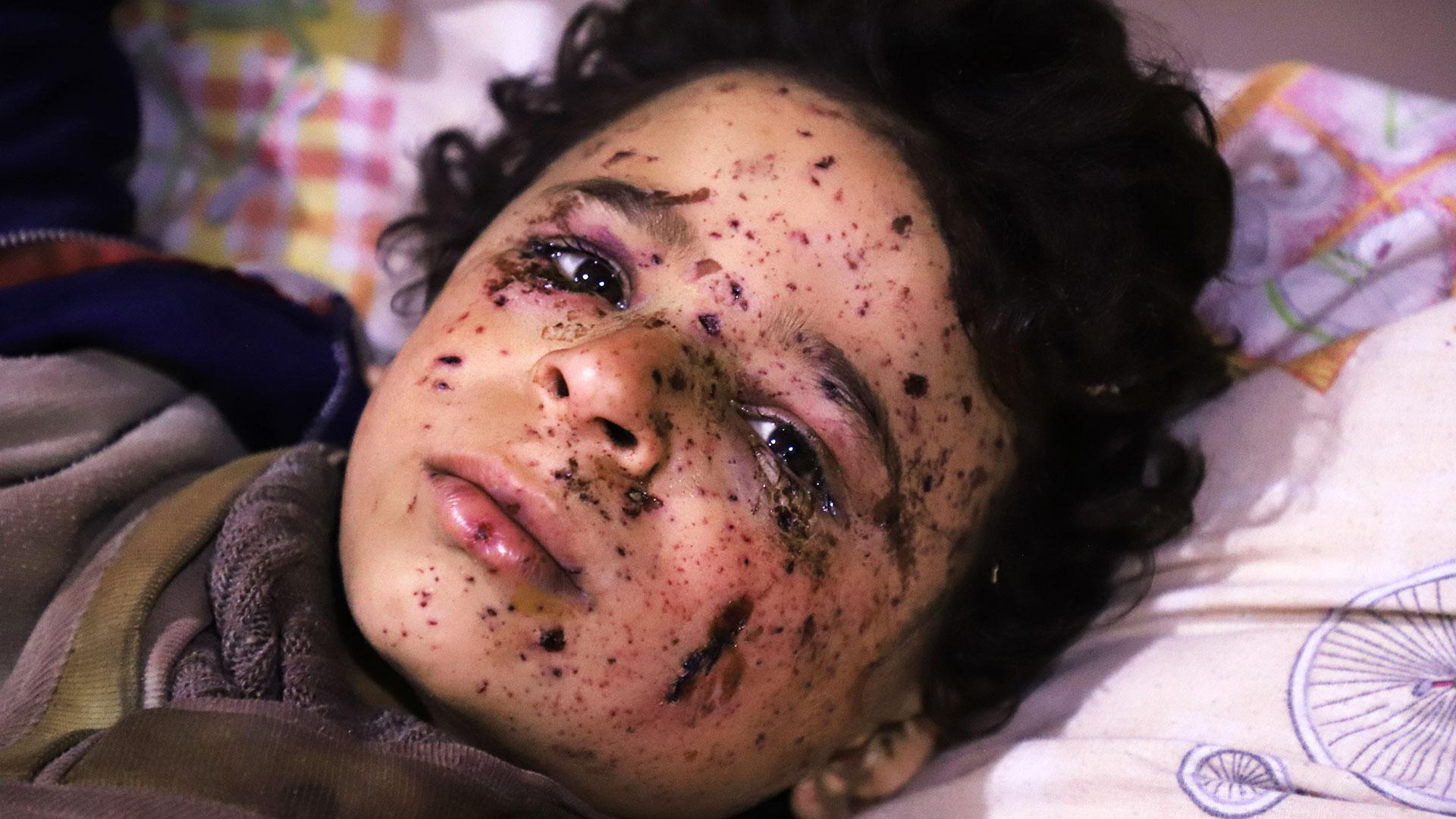 Omar, de 10 años, fue herido en uno de los bombardeos del régimen sirio en Guta. La mayoría de su familia murió en el ataque(AFP)