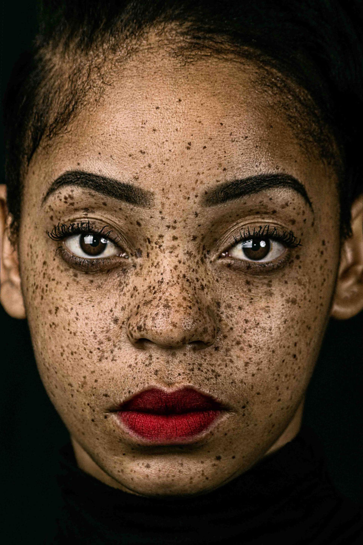 """Competencia """"Abierto"""" – Categoría """"Retratos"""": retrato de una mujer con pecas (Gentileza Sony World Photography Awards)"""