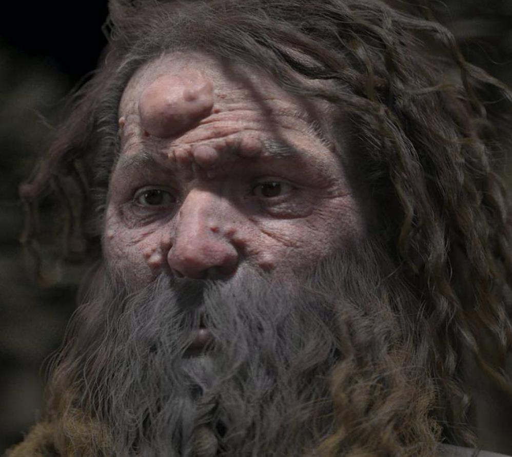 Estudios afirman que el hombre de Cromañón tenía la cara cubierta de nódulos(CHARLIER / VISUALFORENSIC / UVSQ / VIA AFP-JIJ)