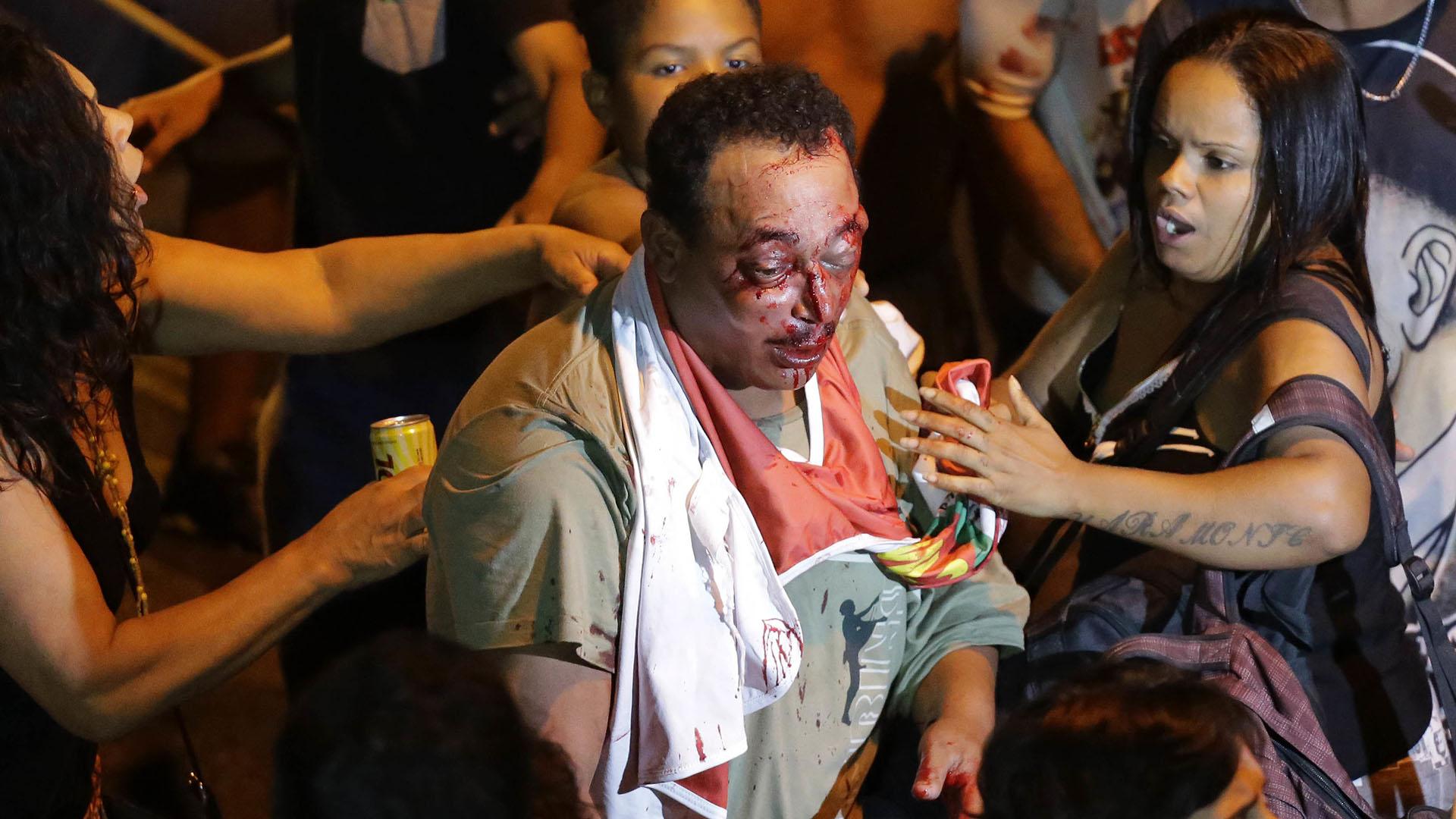Simpatizantes del ex presidente intentan asistir a un hombre que estuvo involucrado en una pelea afuera del sindicato. (AP Photo/Nelson Antoine)