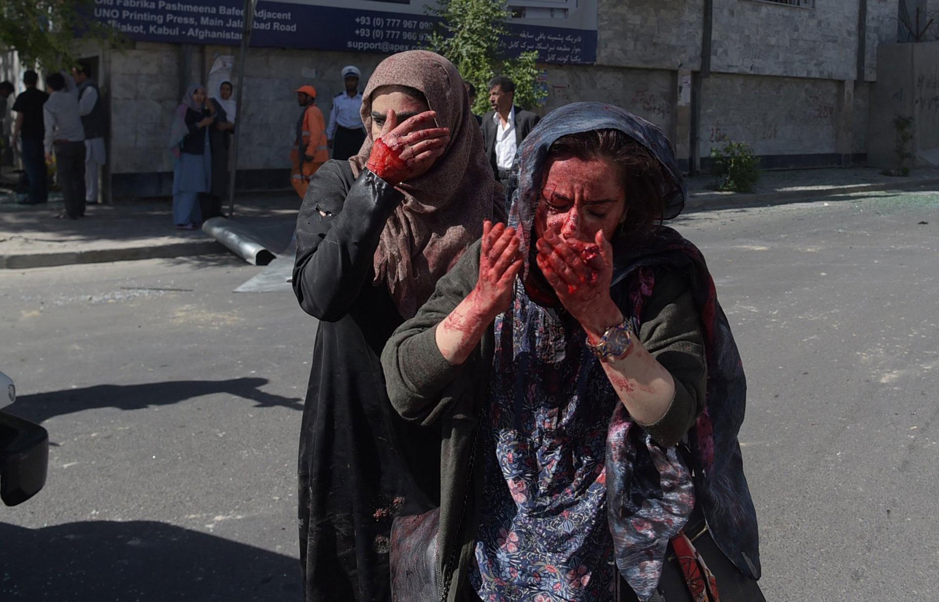 Dos mujeres, heridas en una explosión en 2017 en Kabul (AFP)