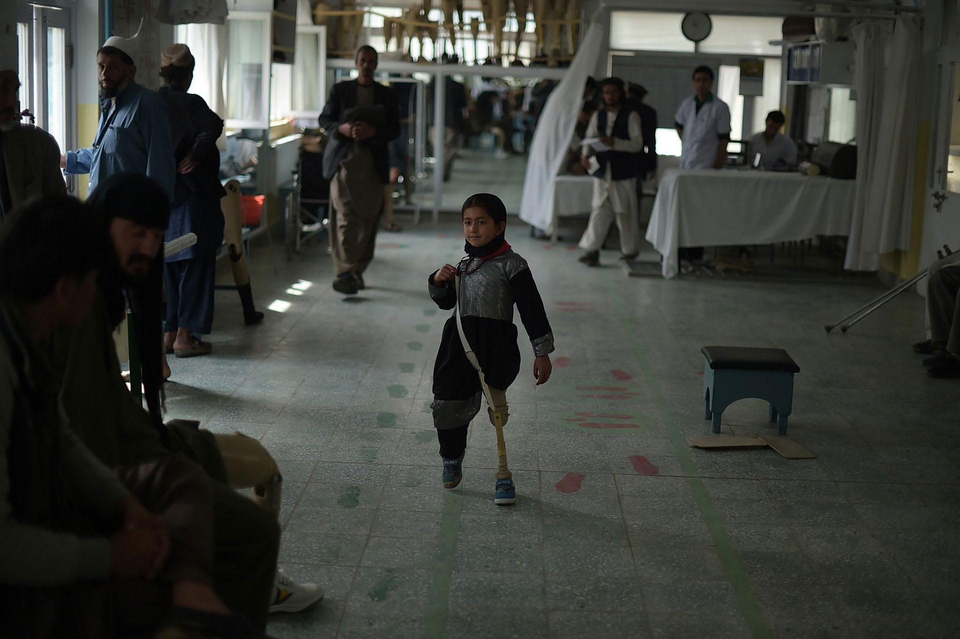 Una niña que sufrió una amputación en 2016 prueba su nueva prótesis, en un hospital de la Cruz Roja en Kabul AFP)