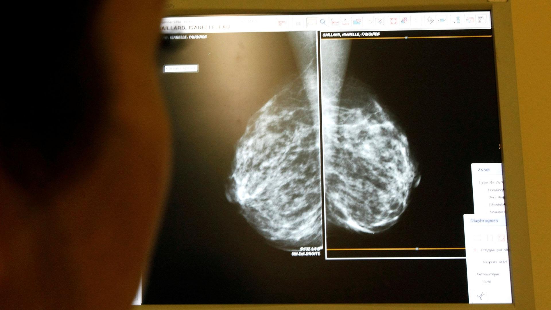Las imágenes en rayos X muestran malformaciones en la mama (Foto: Archivo)