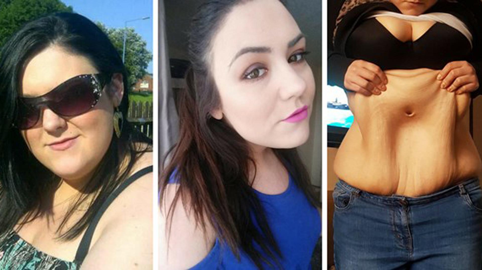cirugia piel despues de perdida de peso