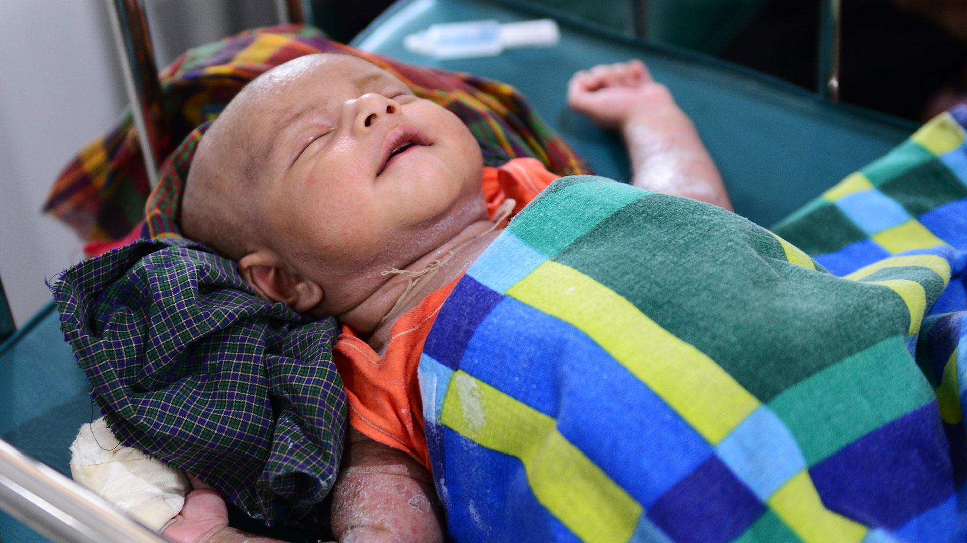 Muchas buscaron terminar su embarazo, opción que es legal en Bangladesh hasta la semana 12 de gestación. Pero muchas veces los abortos se realizan por cuenta propia, en condiciones insalubres, y en menores de edad