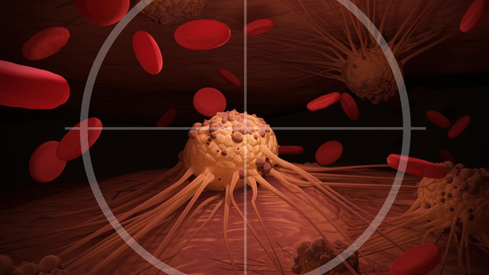 La nueva medicación disponible en nuestro país, demostró, en combinación con quimioterapia, una mejoría significativa en la sobrevida global