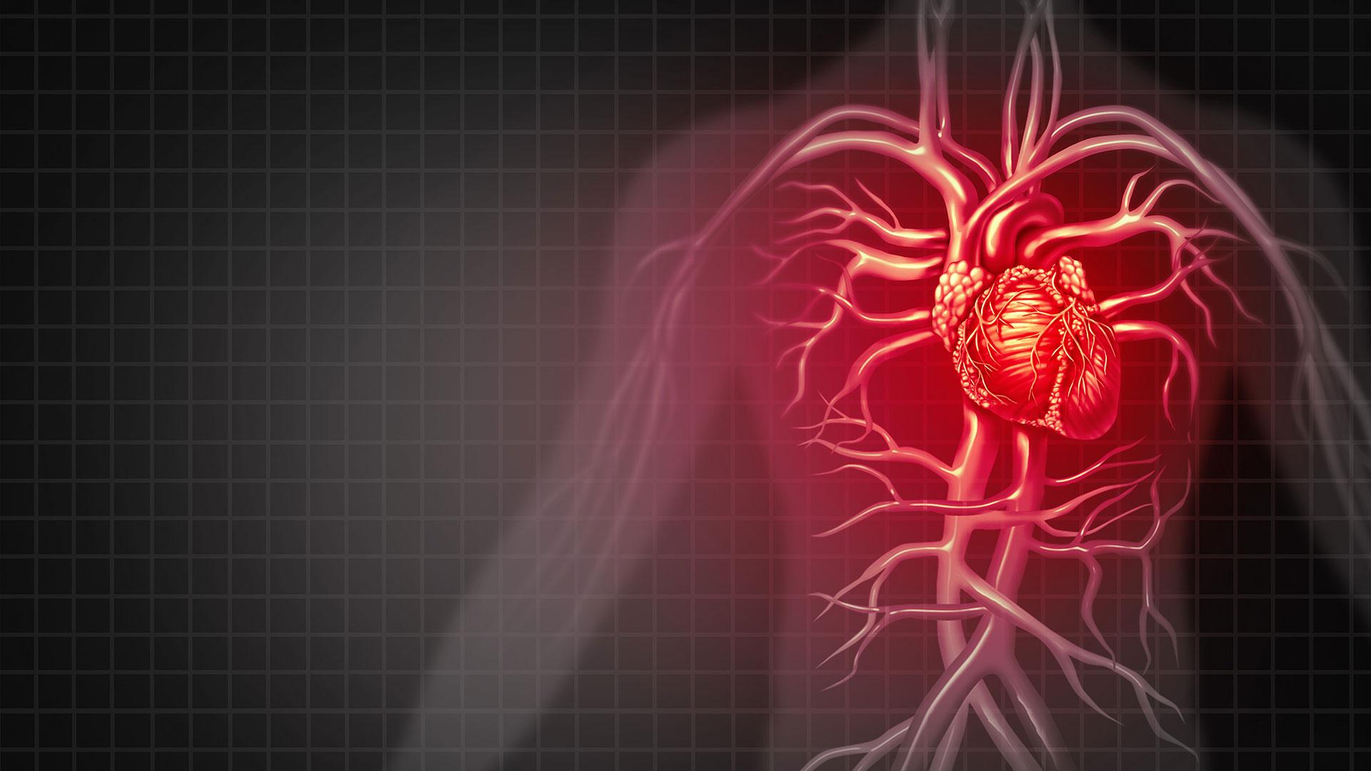 El spect cardíaco se utiliza para evaluar la irrigación sanguínea al corazón (Getty Images)