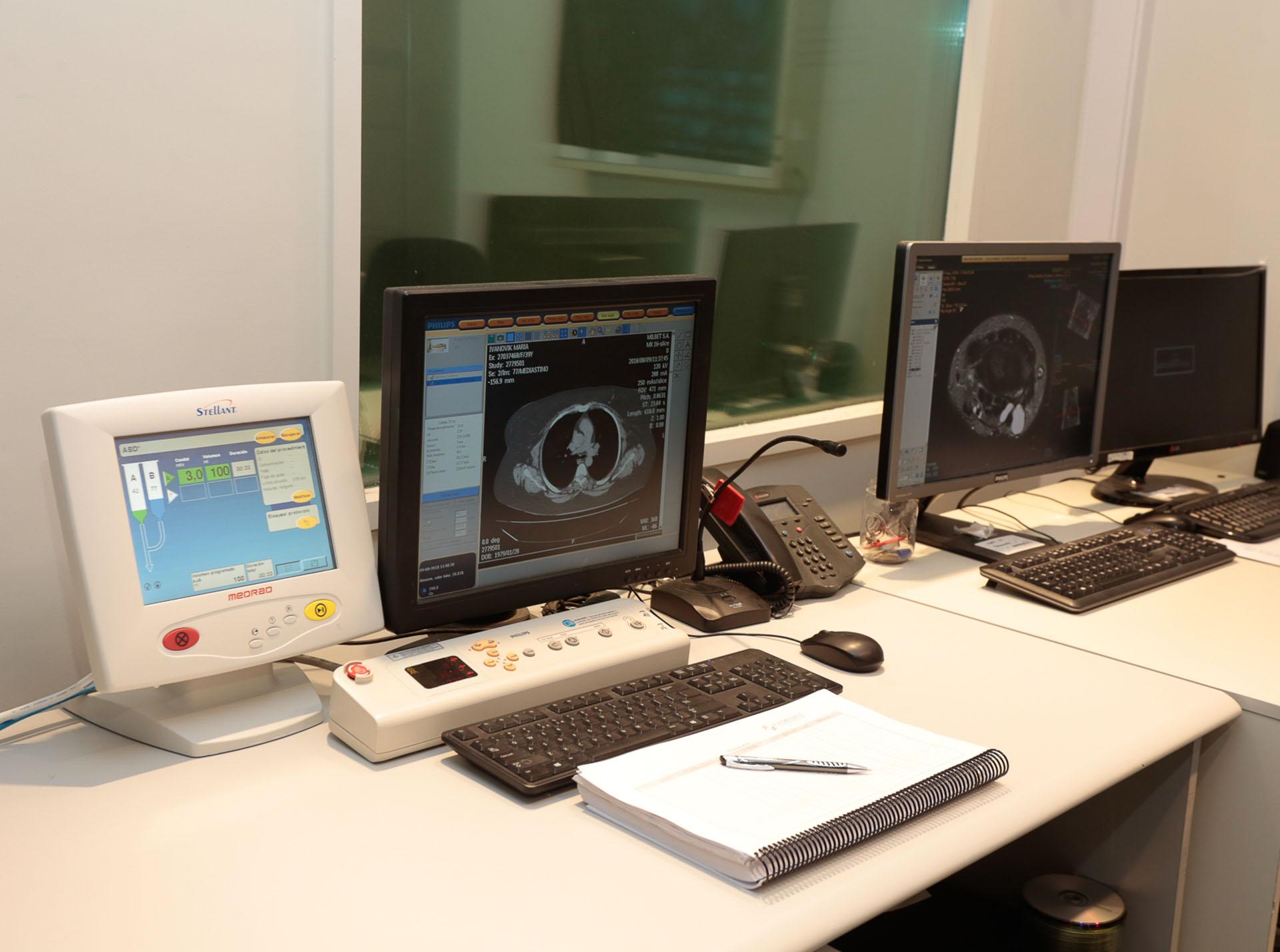 La imagenología diagnóstica avanzó tanto, que es posible detectar patologías a tiempo