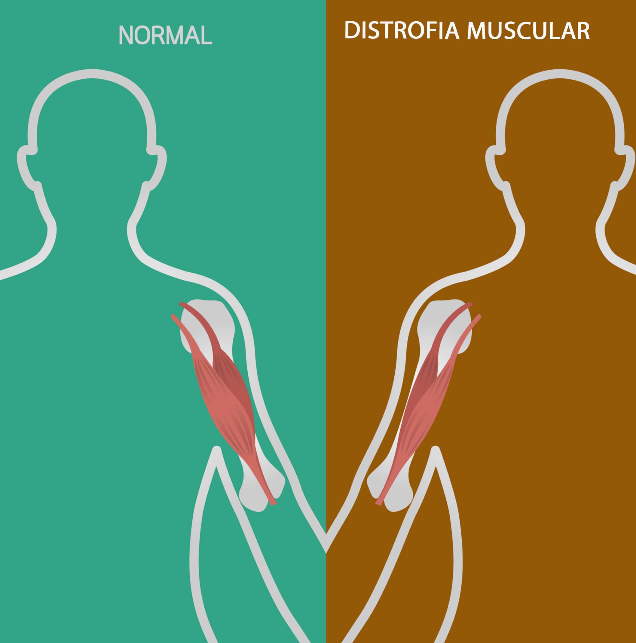 La falta de una proteína no permite el desarrollo muscular apropiado