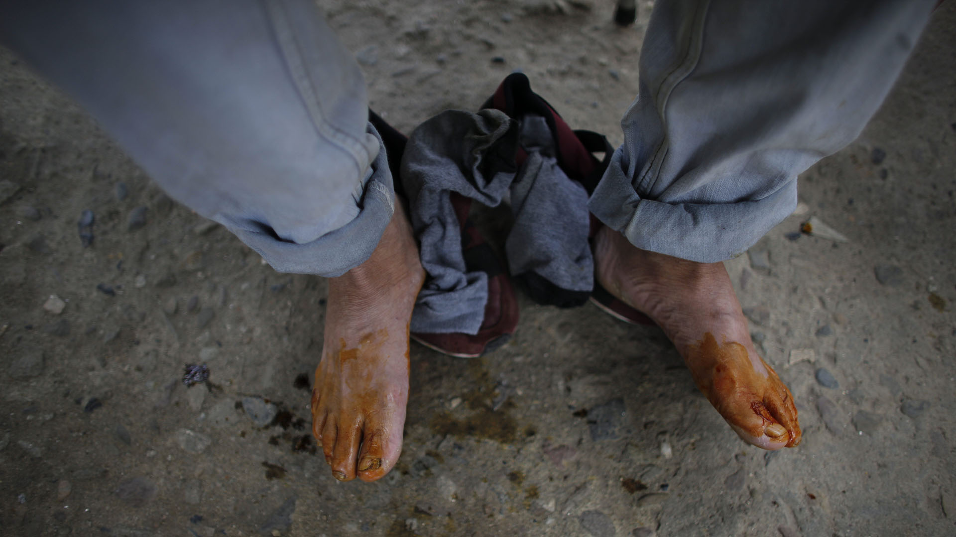 Orlando, de 44 años, acaba de recibir asistencia médica en sus lastimados pies (AP Photo/Ariana Cubillos)