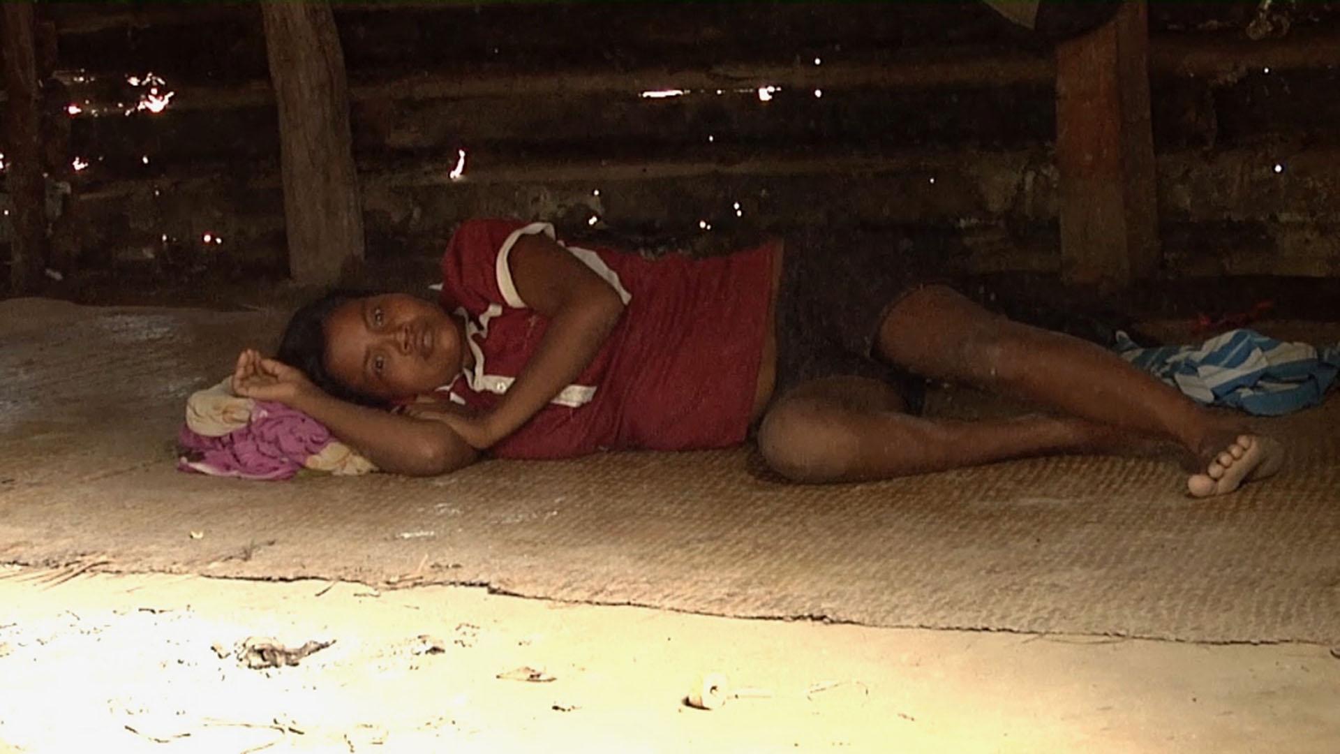 En el estado Zulia esta afectado de gravedad por el regreso del paludismo, la población indigena es la mas afectada