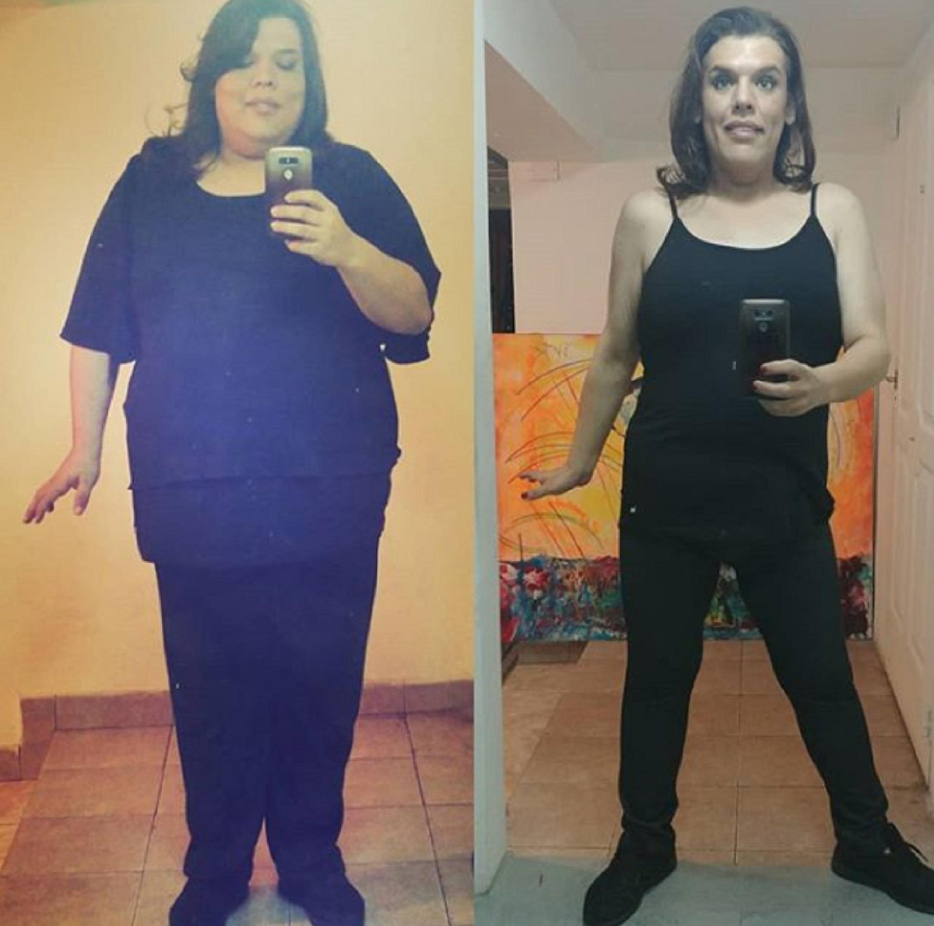 En casi un año, adelgazó 75 kilos