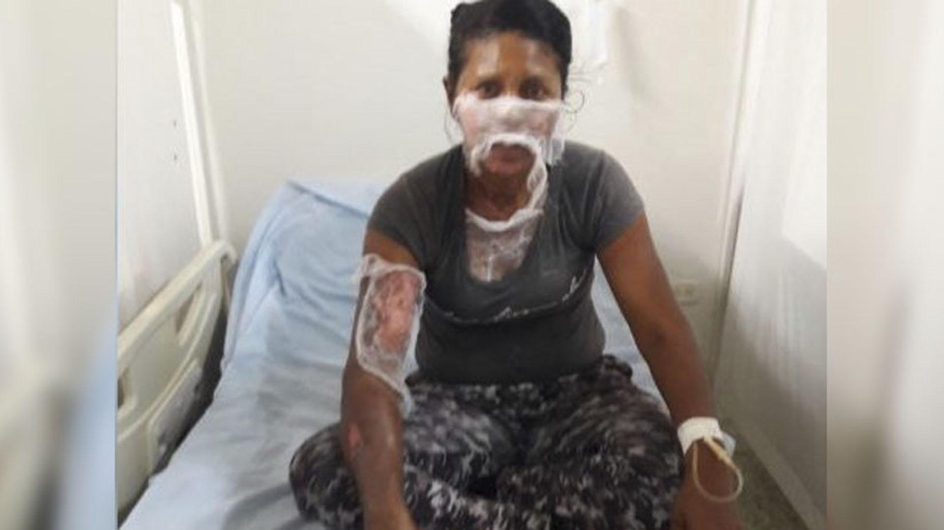 Nelvis María Rivera Padilla, de 36 años, sufrió quemaduras de segundo grado en varias partes de su cuerpo.
