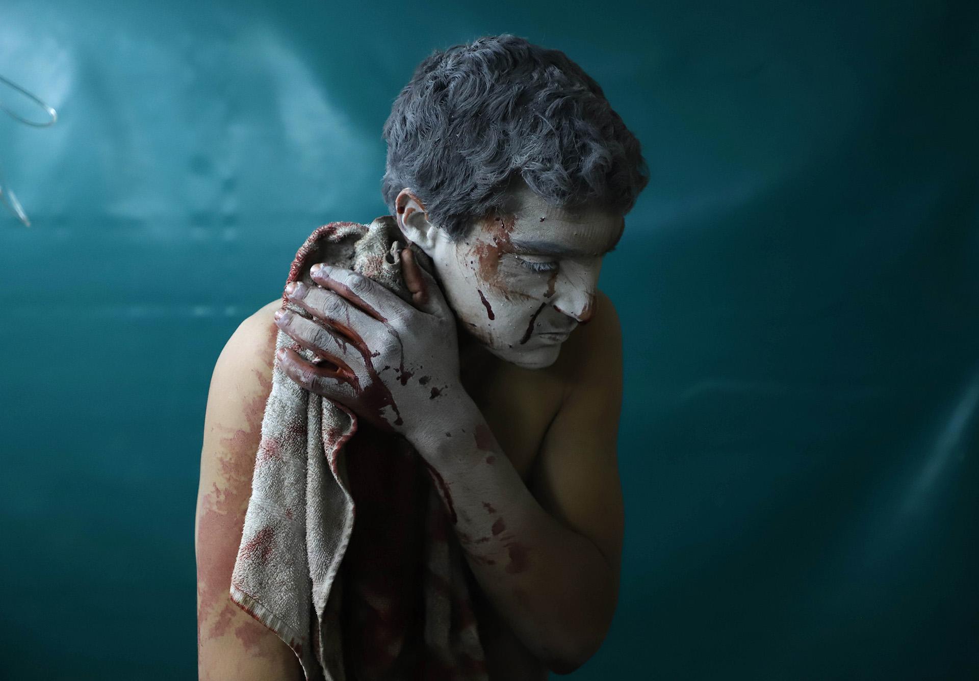 Un herido espera a ser atendido tras un ataque aéreo en Zamalka, en el enclave rebelde de Guta Oriental, en Siria, el 13 de marzo (AMER ALMOHIBANY / AFP)
