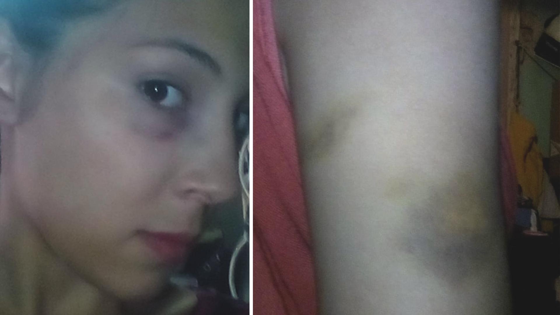 Rocío Chivel continúa con lesiones en la cara y en el brazo.