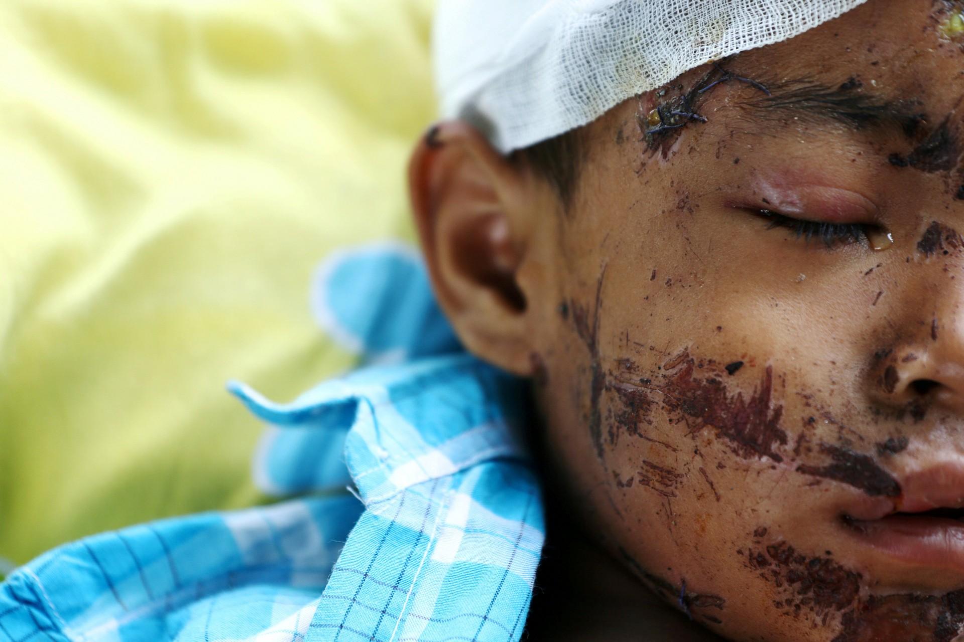 Una víctima del terremoto y el tsunami dentro de un hospital en Palu, Sulawesi Central, Indonesia, 4 de octubre de 2018.