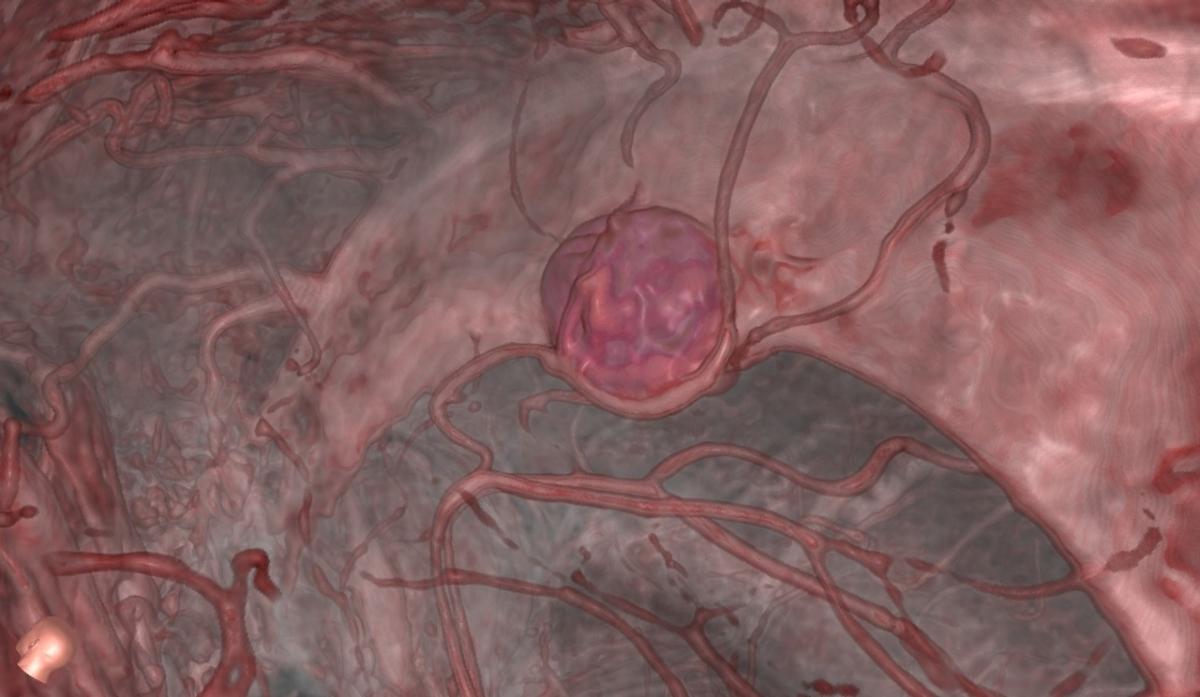 También los pacientes que esperan una cirugía del cerebropueden ver lo que sucederá en RV, lo cual ayuda a pasar momentos muy angustiantes.(Universidad de Stanford)