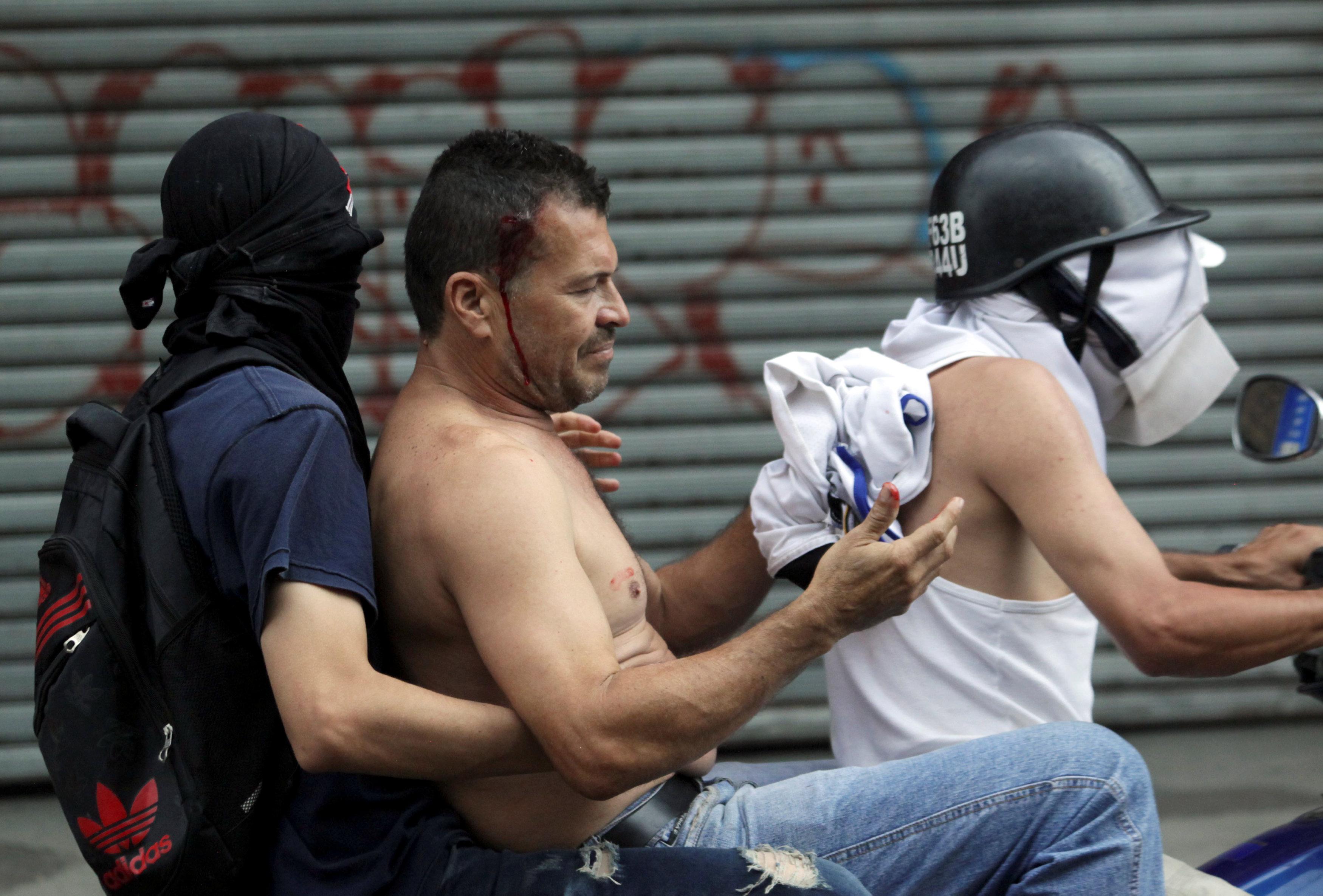 Un hombre herido por las fuerzas chavistas es asistido por compañeros en el Tachira, Venezuela. (REUTERS/Carlos Eduardo Ramirez)