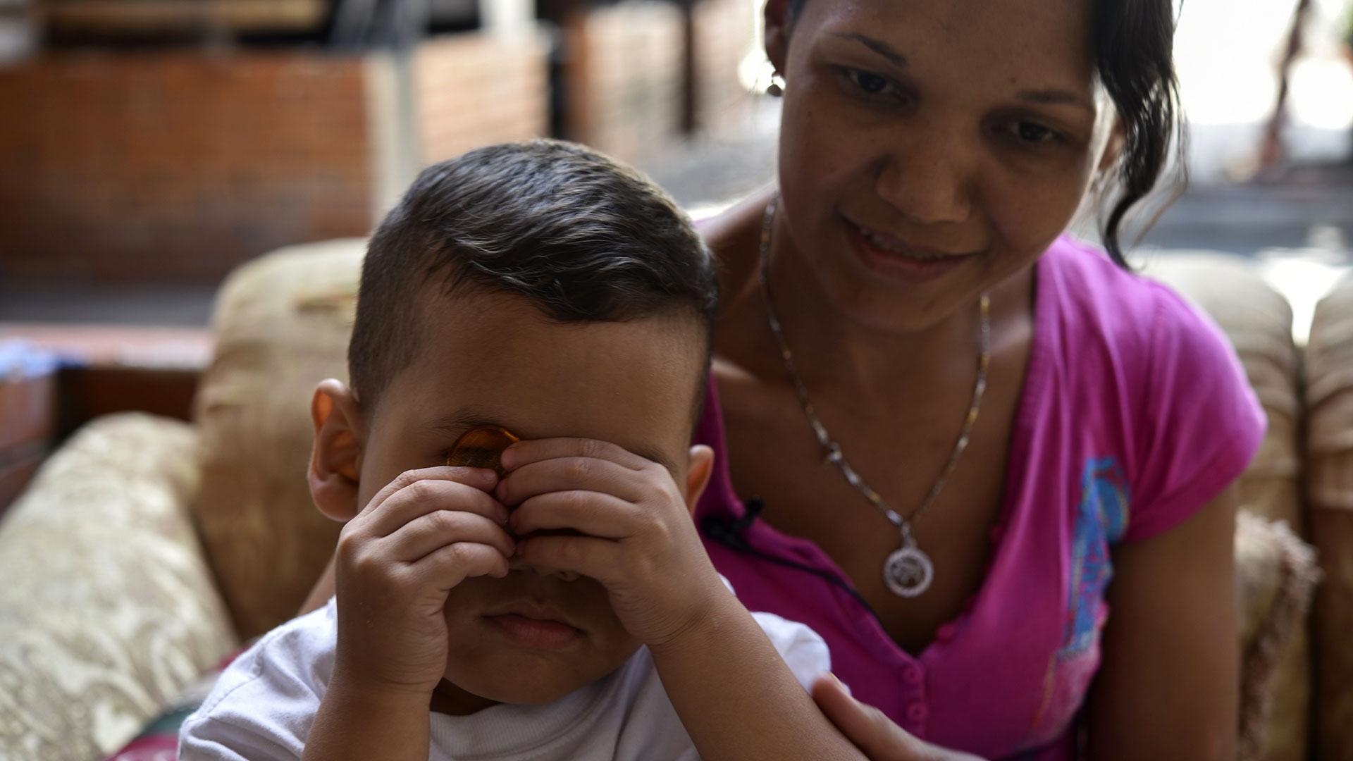 Un estudio de la organización católica Cáritas, de noviembre de 2018, estableció que un 57% de 4.103 menores de 5 años evaluados tenía algún tipo de desnutrición y 7,3% desnutrición severa (AFP)