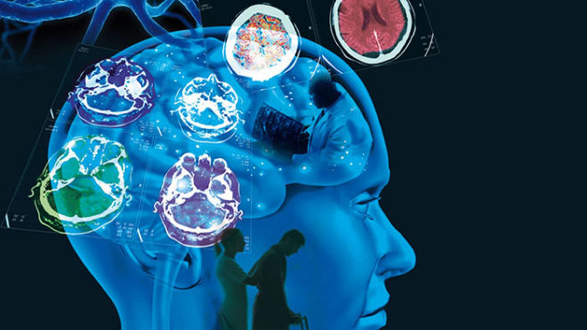 El método se dirige a una región específica del cerebro para controlar la actividad cerebral en casos de epilepsia, Parkinson y alteraciones tanto de la conciencia como del comportamiento