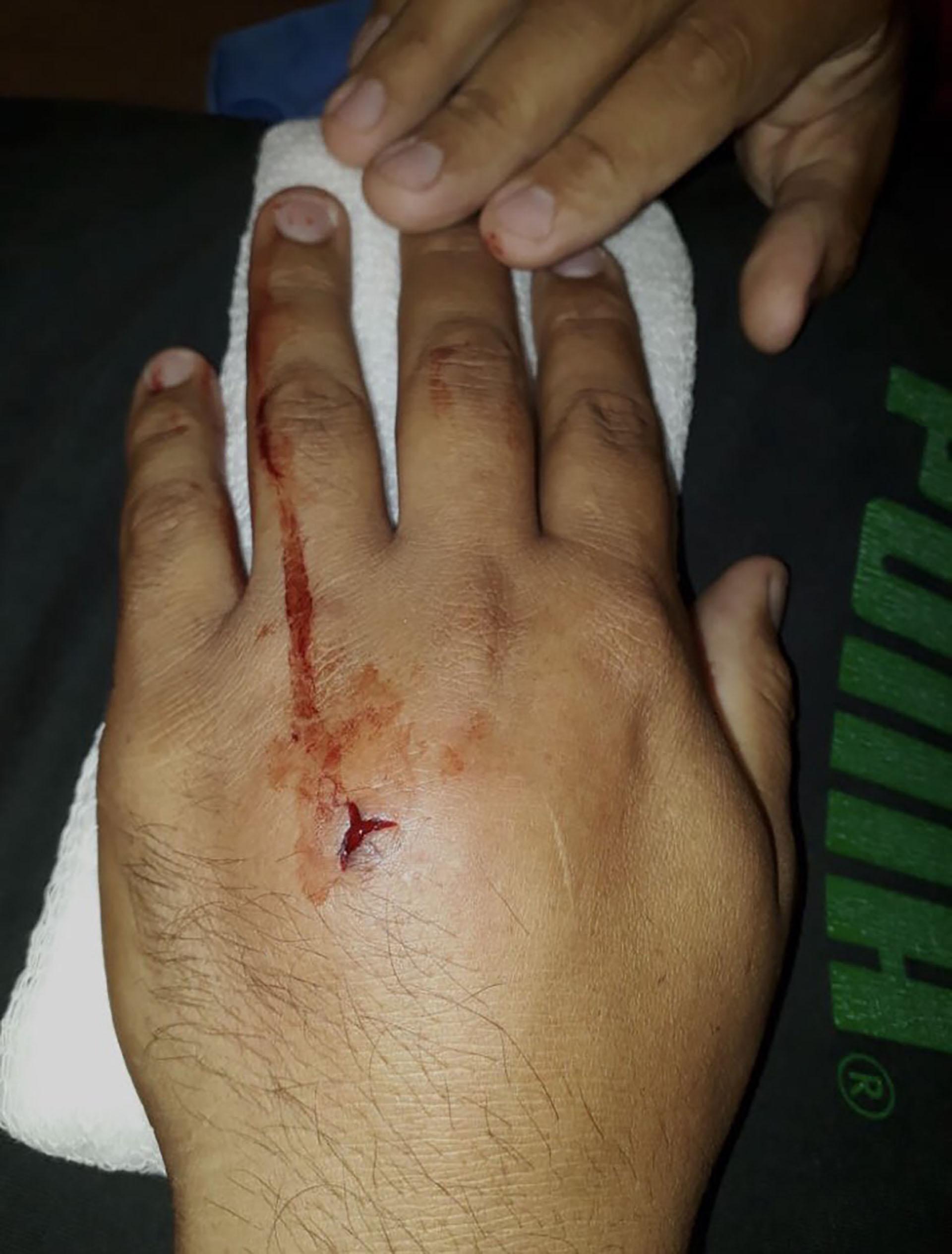 La víctima recibió una herida de bala en la mano y está fuera de peligro. (Twitter: @exprimidores)