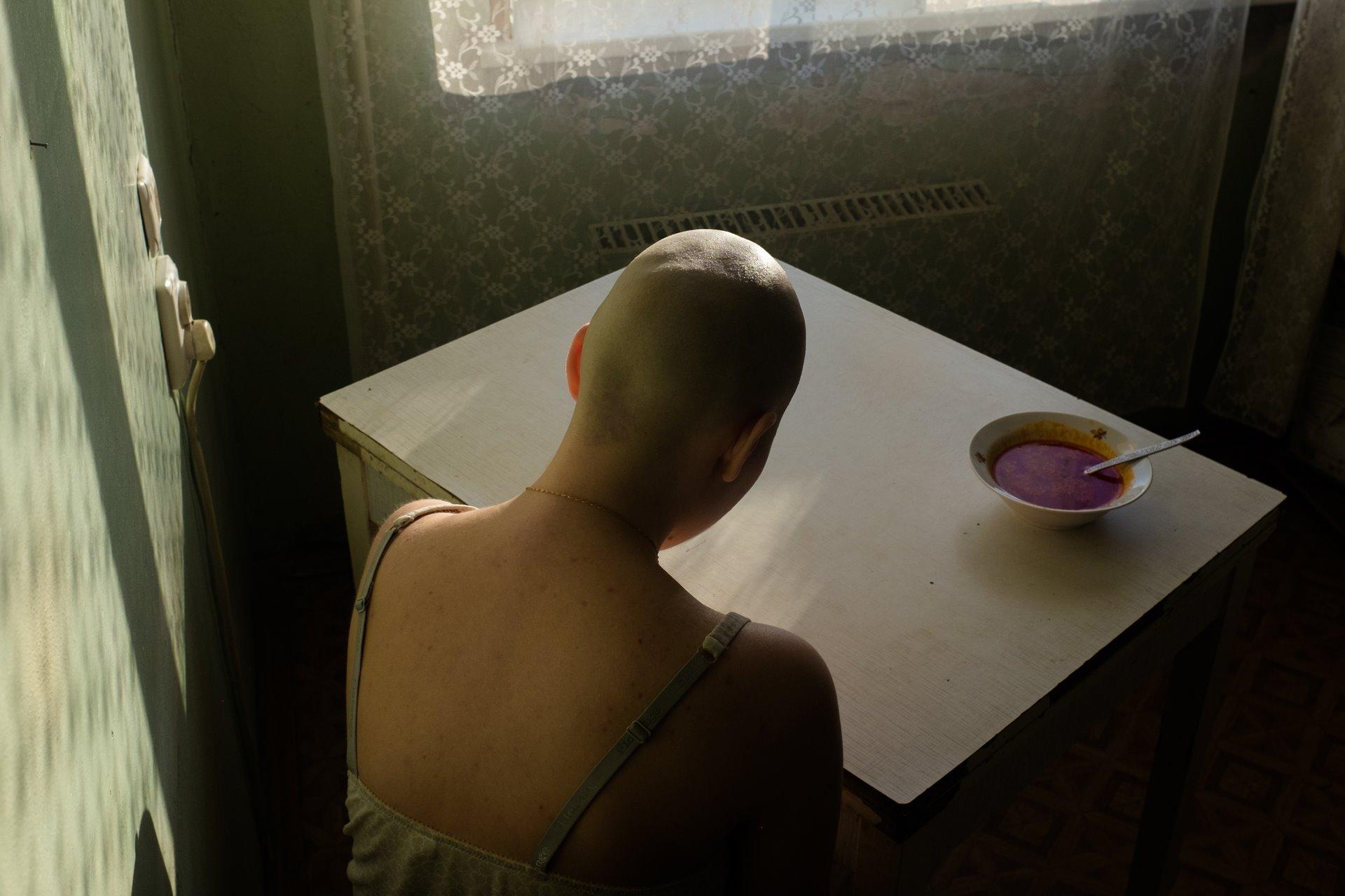Alonya Kochetkova se sienta en casa sin poder enfrentarse al borscht -sopa de remolacha-, su comida favorita, durante el tratamiento para el cáncer. Kochetkova tomó este autorretrato después de la cirugía y la quimioterapia, cuando, aunque sabía la importancia vital de los alimentos, luchaba por comer / Foto: Alonya Kochetkova