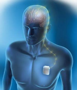 Hay veces que la medicina actua diferente en las distintas etapas de la enfermedad (Foto: Neuroestimulador. Medtronic)