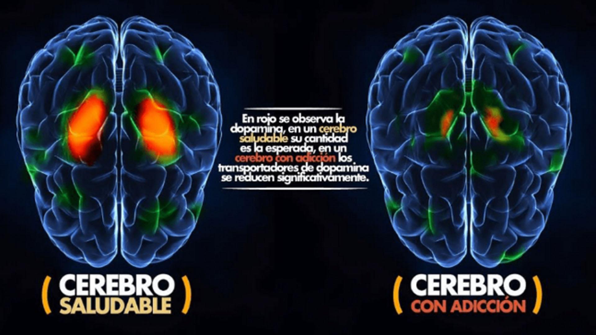 Cómo afecta al cerebro este opiáceo