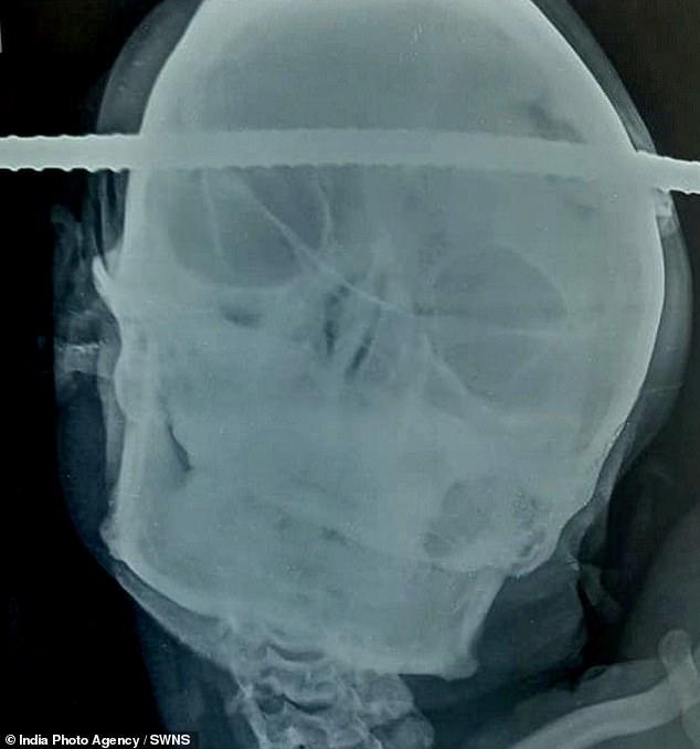 La radiografía del cráneo de Bahe