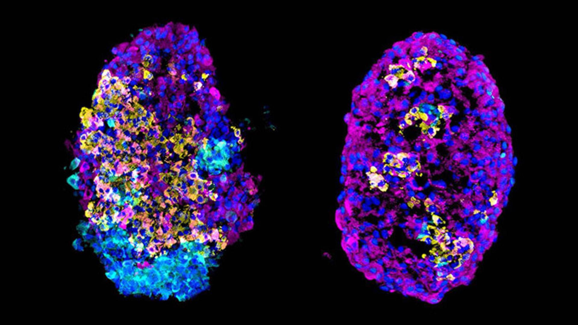 Los investigadores utilizaron la secuenciación de una sola célula para identificar el catálogo completo de genes expresados en decenas de miles de células individuales