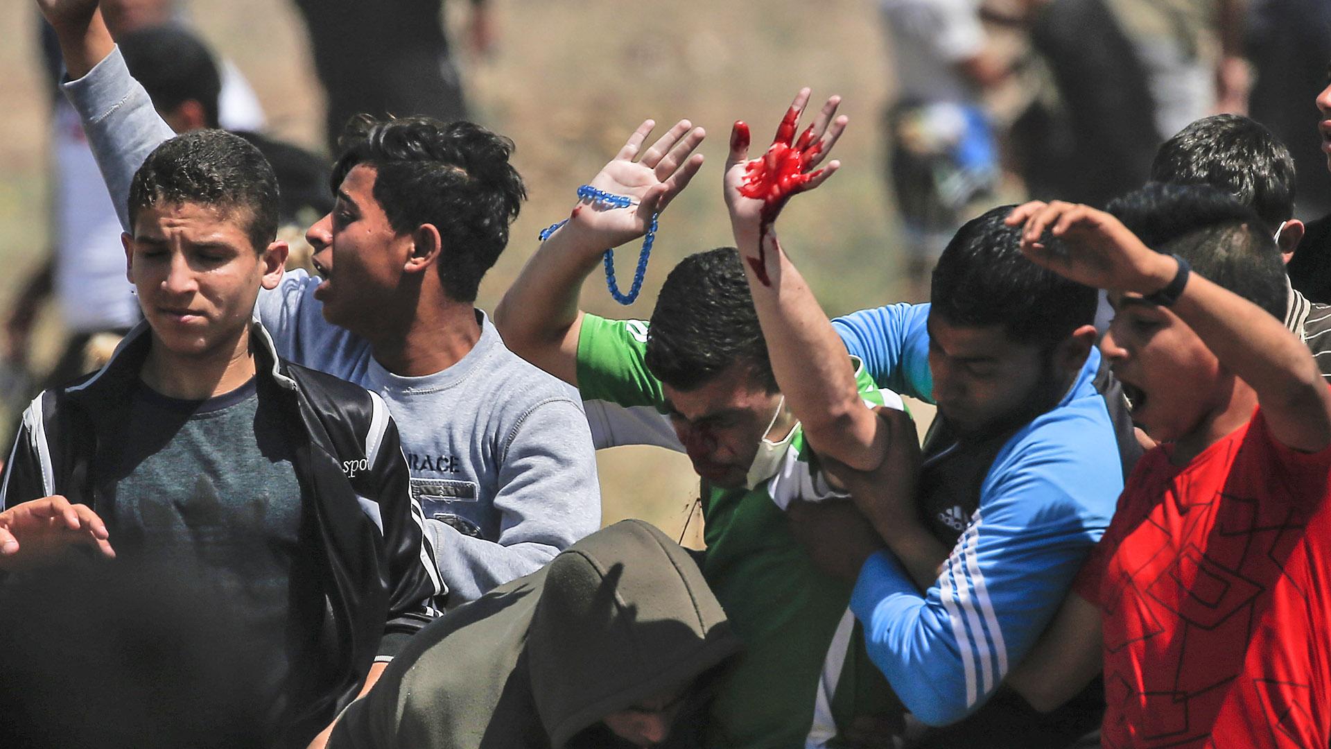 Decenas de personas resultaron heridas en la protesta(Menahem KAHANA / AFP)