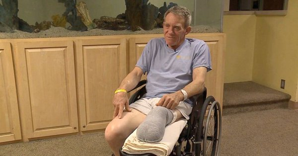 Kurt Kaser se recupera y continúa su terapia para poder usar una prótesis (cortesía KETV)