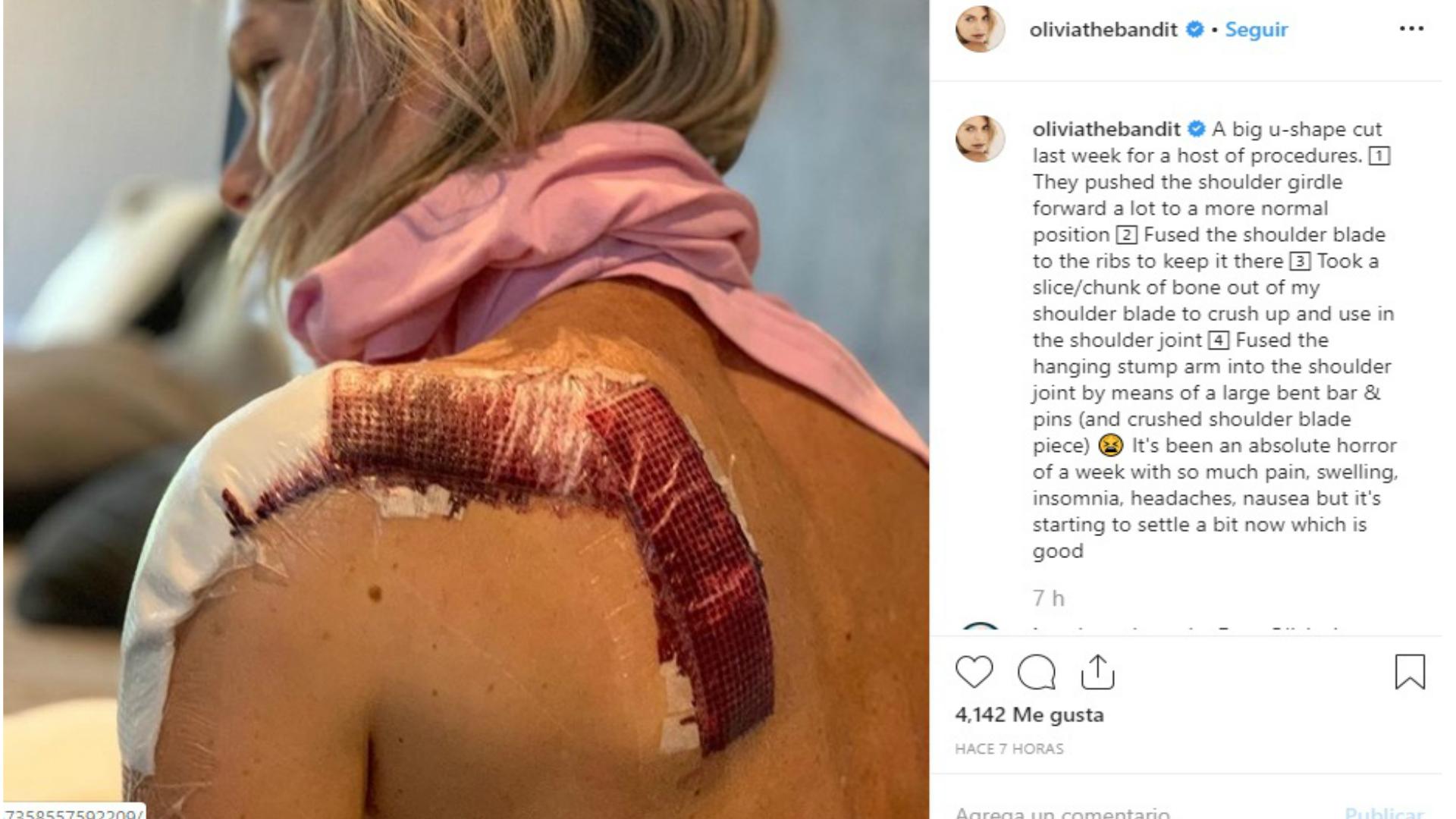 """Accidentes Peli Porno la doble de milla jovovich en """"resident evil: el capítulo"""