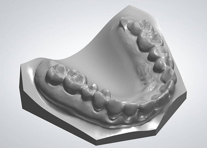 3shape model   scanit ortho