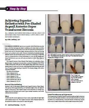 Achieving Superior Esthetics with Pre-Shaded ArgenZ Anterior Zirconia