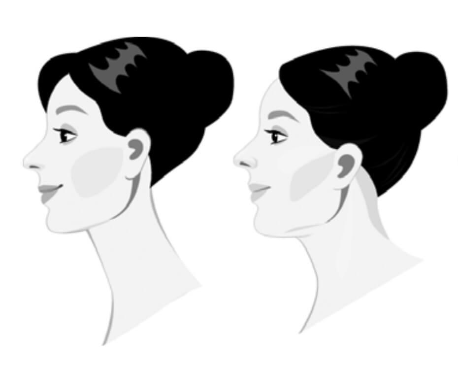 Упражнения для нижней части лица и шеи
